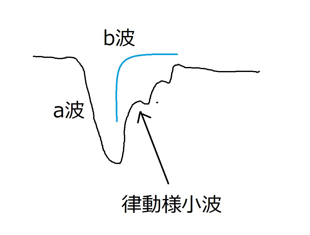 正常の網膜電図(ERG)のイラスト